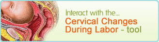 Cervical Changes During Labor Tool